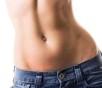 Abdominoplastia y mini-dermolipectomìa